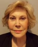 Susan Marshall-Valentini